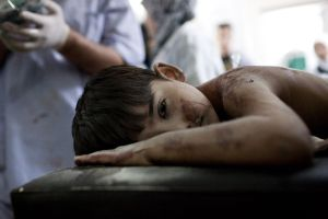 A boy is treated by doctors and nurses after he sustained minor injuries from an airstrike in the Sha'ar neighborhood of Aleppo, Syria, on Friday, August 24, 2012.